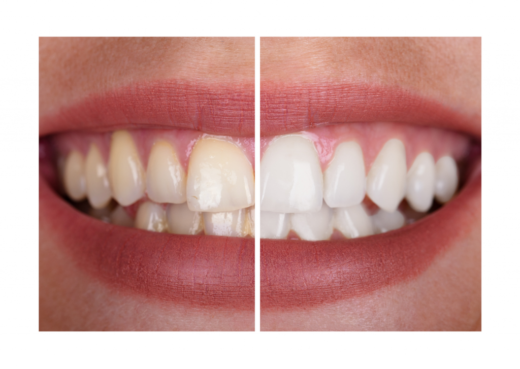 Blanqueamiento dental en Madrid en nuestra clinica PGCA del barrio de Salamanca