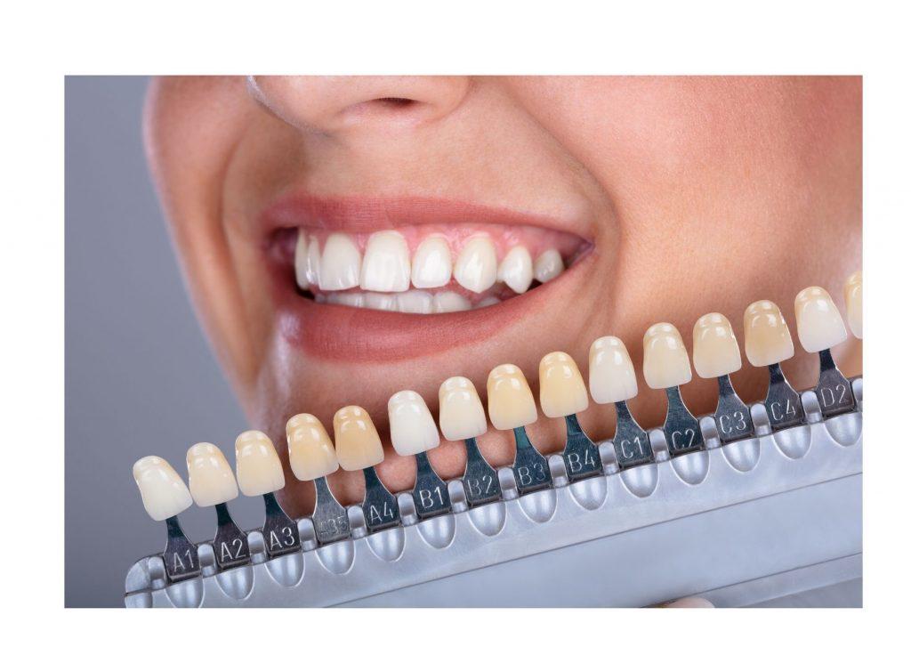 Blanqueamiento dental Madrid Luis Montero Marin