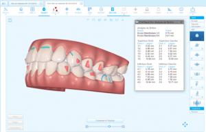 Clincheck Invisalign Madrid PGCA clinica dental