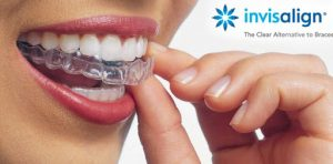 Invisalign Madrid clinica dental PGCA