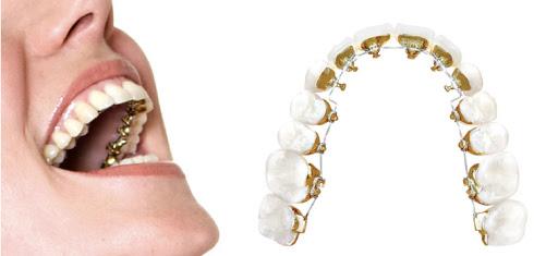ortodoncia invisible dentistas madrid clinica pica