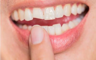 El riesgo de limarse los dientes: retos virales peligrosos