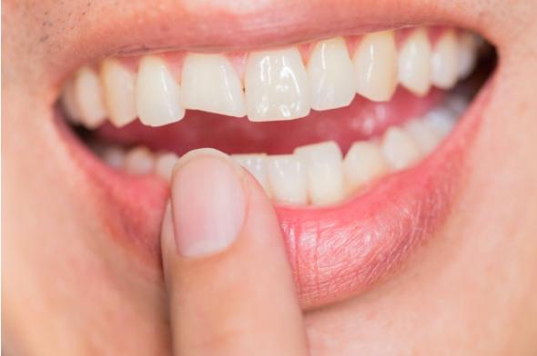limarse los dientes riesgos