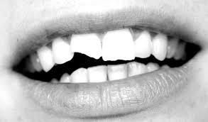 ¿Qué hacer si se rompe un diente?